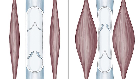 Bomba muscular da barriga da perna - Bomba muscular da barriga da perna