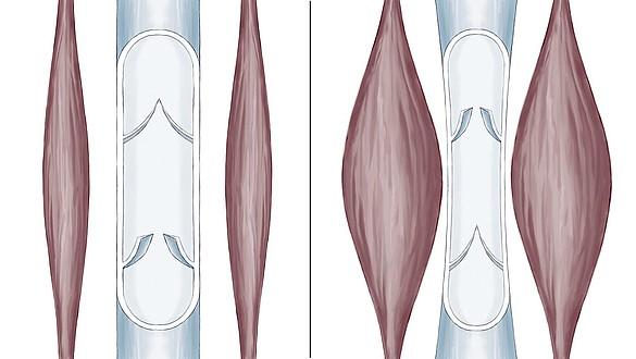 Bomba muscular da barriga da perna