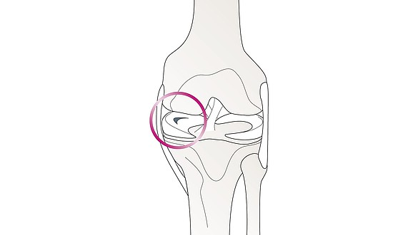 Lesão do menisco - Lesão do menisco