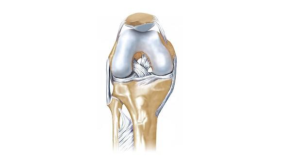 Lesões dos ligamentos cruzados